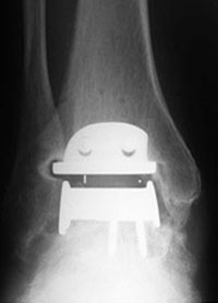 X-Ray post opp ankle replacement